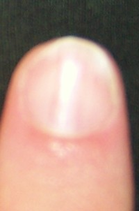 Single Nail